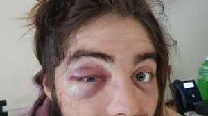 Elliott Harvey in hospital.