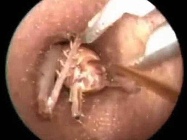 SKIN-CRAWLING: A woman presented to hospital with an insect in her ear. NOTE: This is a generic image.