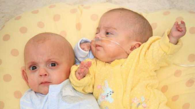The doctors didn't have high hopes for such premature babies but Dolly and Albert had other ideas.