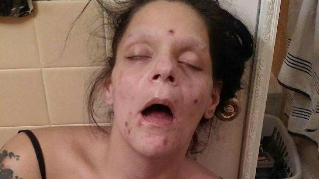 Melissa Lee Matos has shared shocking pictures of herself as a heroin addict. Picture: Facebook