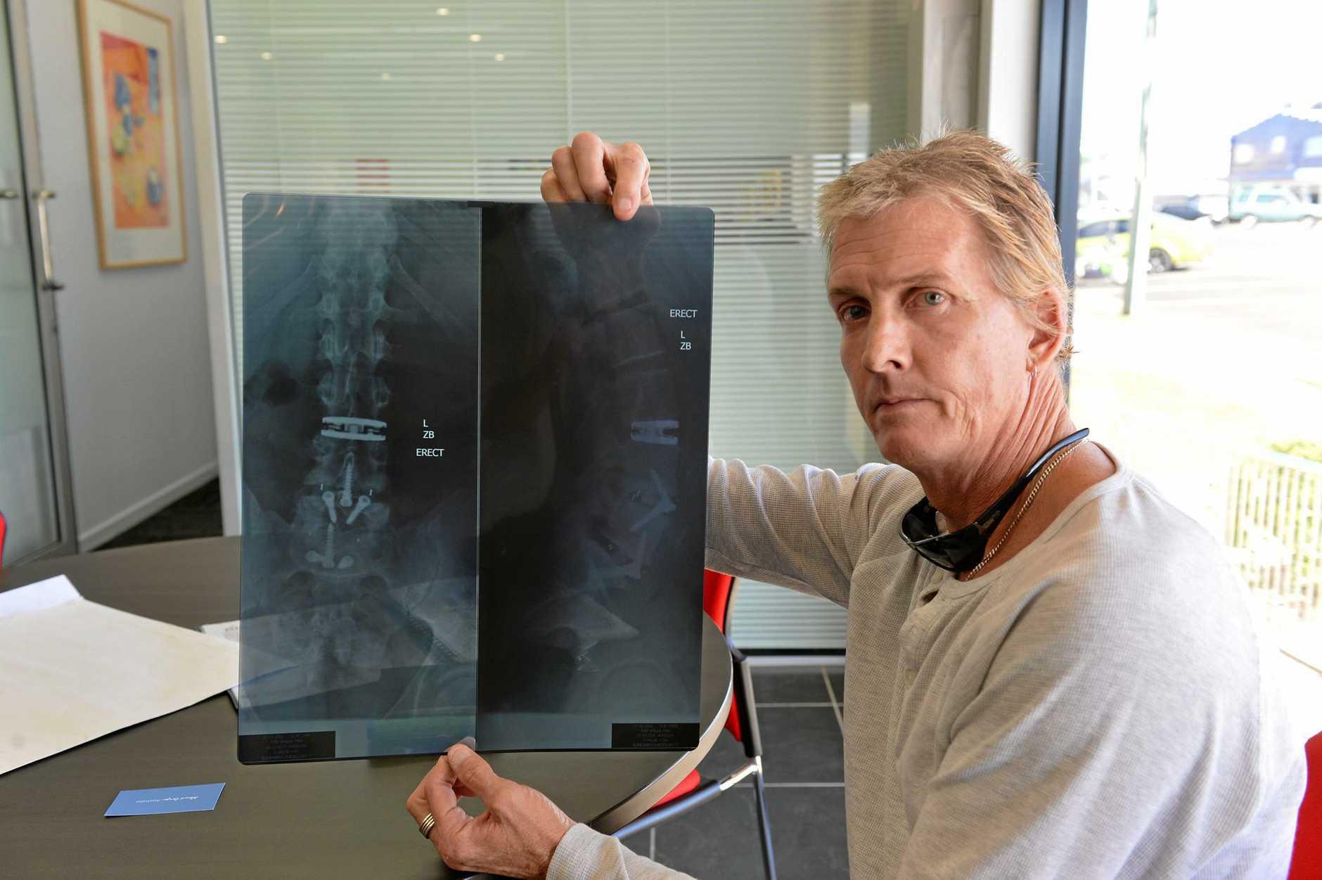 CHRONIC PAIN: Shaune Frisk wih X Rays of his damaged spine.