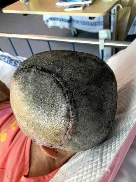 HORROR INJURIES: Helen Flanagan, 57, will undergo head surgery to have her skull plate reinstalled.