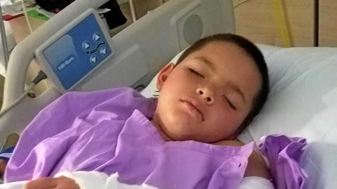 BROKEN ARM: Christian Cameron after his surgery.