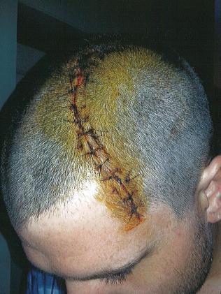 Mr Anderson's injury.