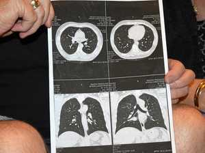 CQ black lung victims sue mines for $5m