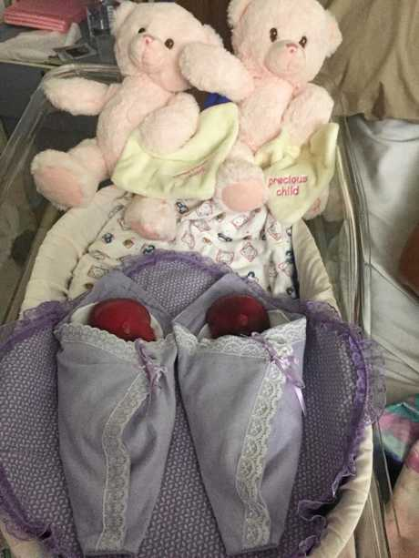 The twins after their still birth laying in the cuddle cot at Mackay Base Hospital.