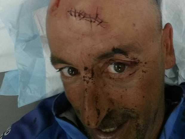 Oliver Galea, 44, suffered a major laceration to his head
