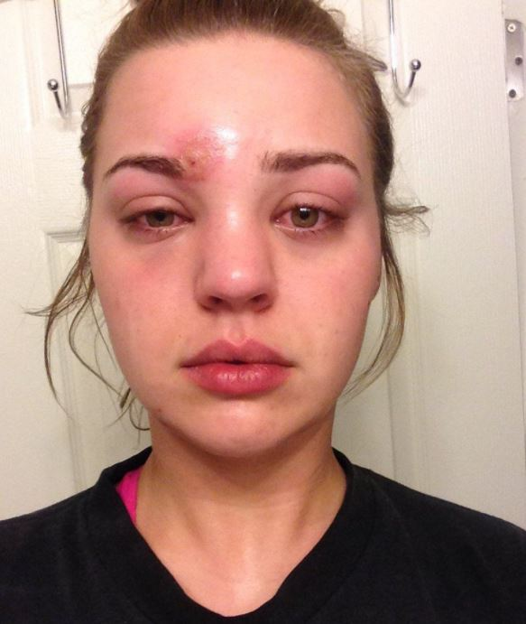 After popping what she thought was a pimple, Katie Wright felt her head began to swell and rushed to hospital to discover she was fighting off a case of cellulitis.