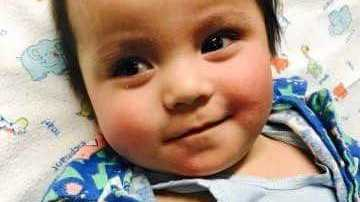 Now 10 months old, Logan is happy and recovering, despite his brain being damaged and his vision impaired.