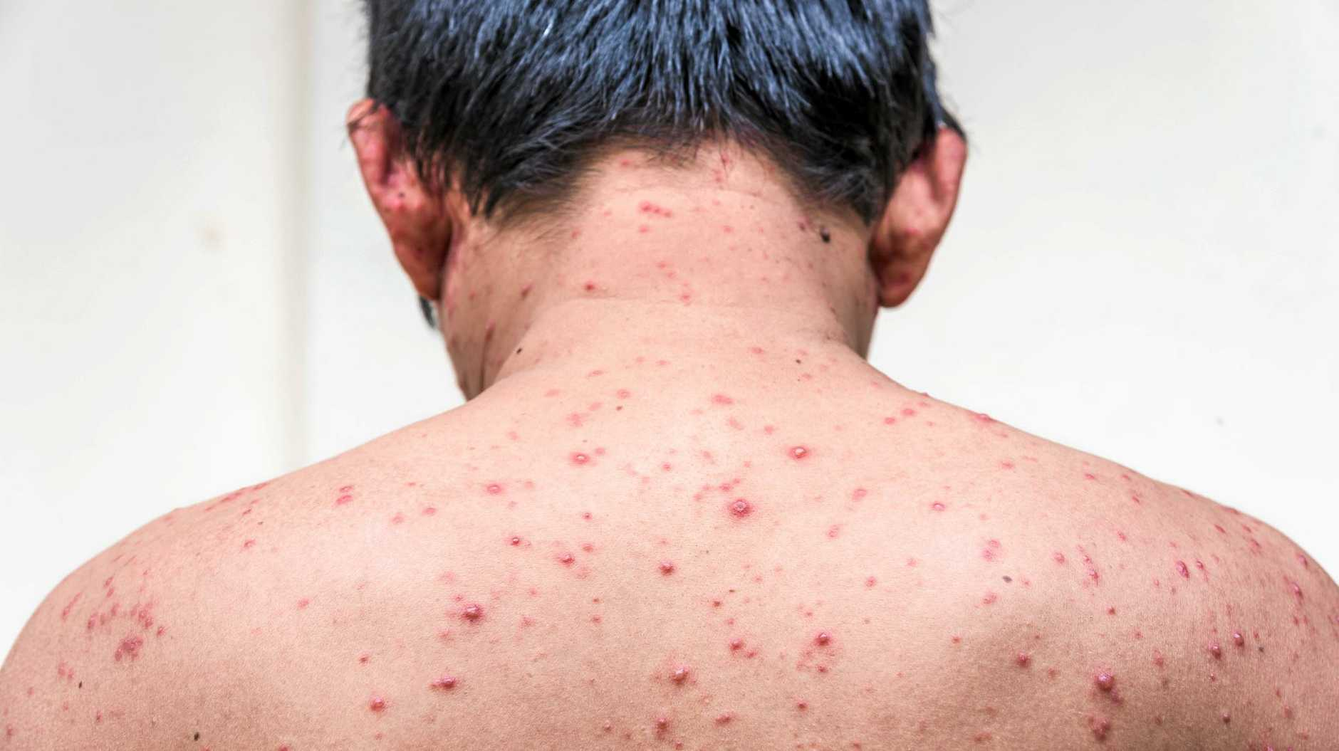 Back side of a man who having varicella blister or chickenpox ,isolated on white