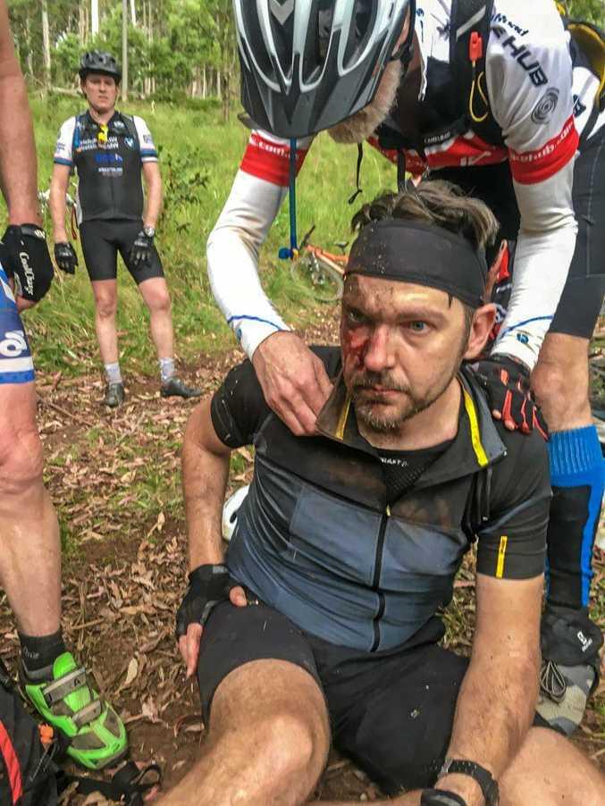 INJURY: Damien Mueller after a mountain bike accident near Warwick.