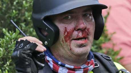 A white nationalist demonstrator, bloodied after a clash with a counter demonstrator, talks on the radio receiver at the entrance to Lee Park in Charlottesville, Va., Saturday, Aug. 12, 2017. (AP Photo/Steve Helber)