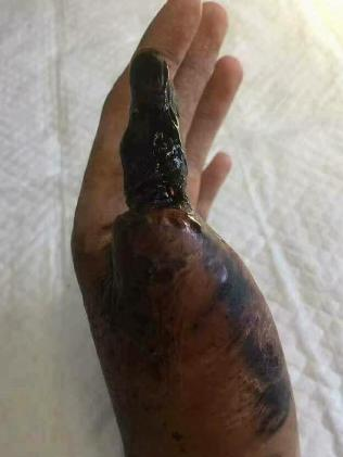 The victim's thumb shrivelled and turned black.Source:Facebook