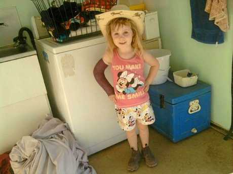 Gemma Albert was airlifted to Mackay Base Hospital after a farm accident.