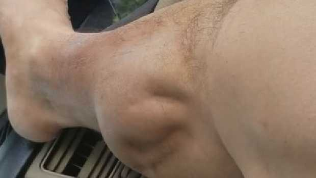 Painful muscle cramp moves by itself looking like an alien creature