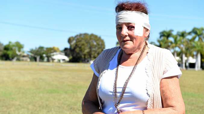 CHECK FIRST: Cyclist Laraine Fullerton was hospitalised on Monday when a driver suddenly opened their door in front of her.