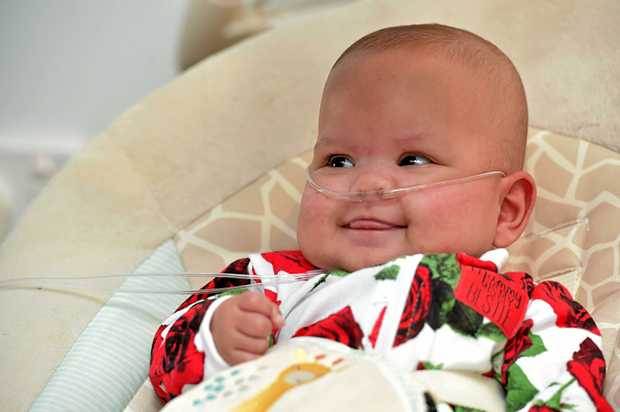 ALL SMILES: Felicity was born at 26 weeks old and spent the first three months of her life in hospital. She has gone home with her family and remains on oxygen.