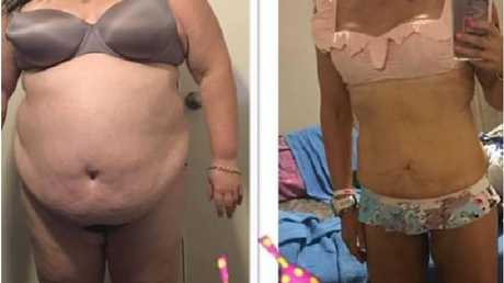 At 184 kilograms, doctors were concerned Elle wouldn't live past 40. Photo: FacebookSource:Facebook