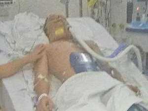 Coast teen hit by van 'may never be same boy again'