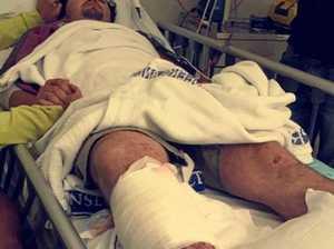 Brodie's bullhorn injury