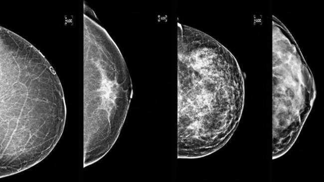 BREAST DENSITY: Breast cancer density on mammogram.