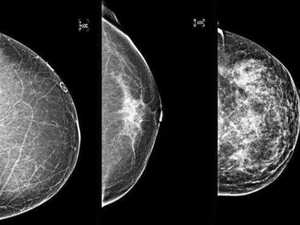 Women, know your breast density