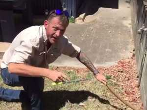 Man left bloodied by snake catcher's bow and arrow shot