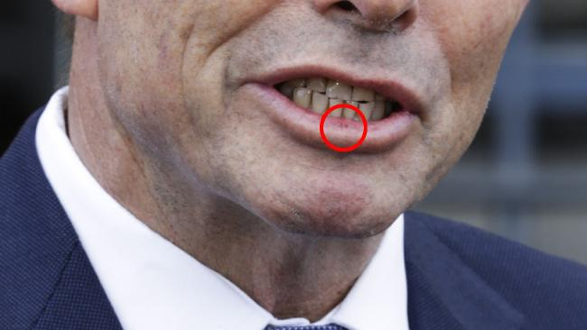 Is this the swollen lip Tony Abbott received? Picture: AAP Image/Jim RiceSource:AAP