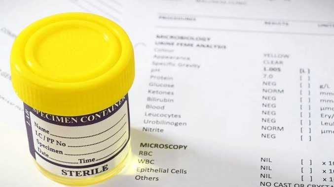FILE PHOTO: Drug testing - urine sample.