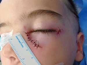 Boy mauled: 'I can't get the scream out of my mind'