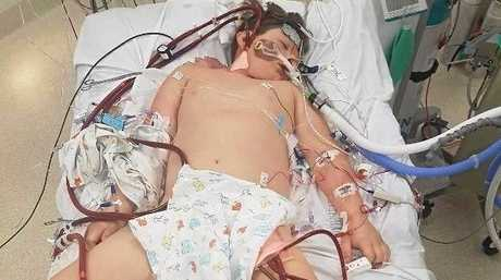 10-year-old Jaymon Gaul is in intensive care fighting for his life after getting the flu.
