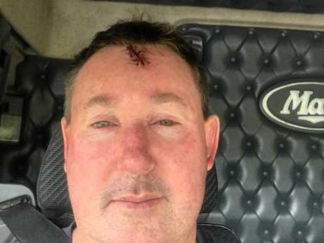 FAR RIGHT: Driver Andrew Myers with his injury received after he was hit by a flying rock.