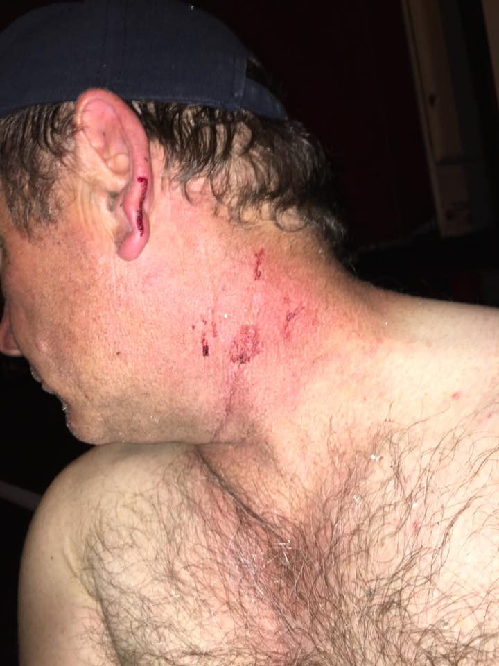 Drivers Neil Kerr was hit in Dubbo last year and sustained shards of glass to his neck.