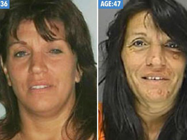 Before and after pictures show the long term effects of drug use. Picture: Rehabs.com