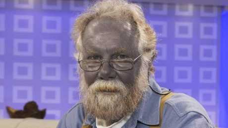 "Before he died from poisoning himself with colloidal silver, Paul Karason's skin turned blue. ""Kelly's"" mother-in-law was feeding it to Kelly's children."