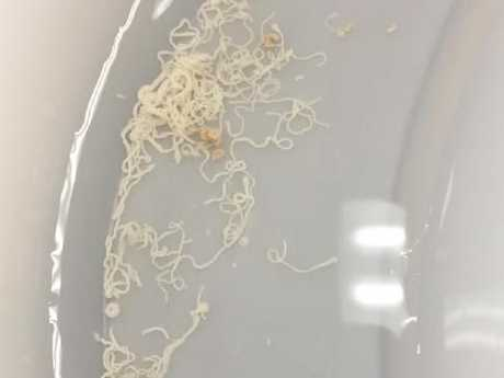 The worms extracted out of an adult green tree snake that was brought in to the Brisbane Bird and Exotics Veterinary Service in Greenslopes recently. Credit: BBEVS