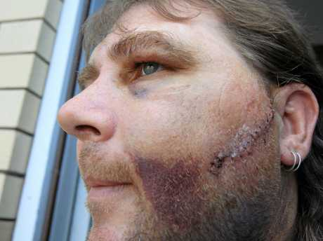 Michael Martin Snr pictured after he was the victim of a glassing attack in 2010.