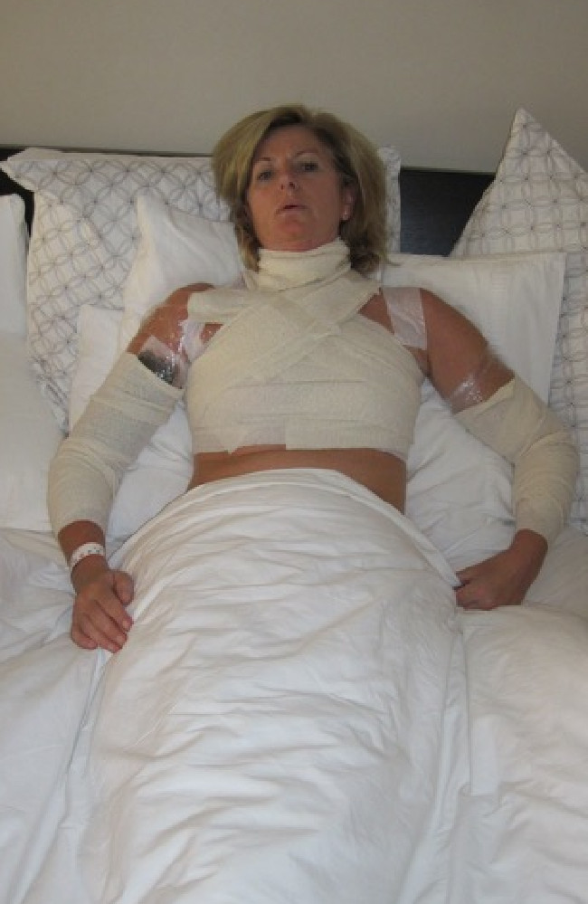 Victorian woman Adele Wishart after being injured by soup cooking in a Thermomix. Picture: Supplied
