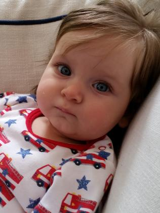Lucy was diagnosed with the birth defect shortly after she was born.