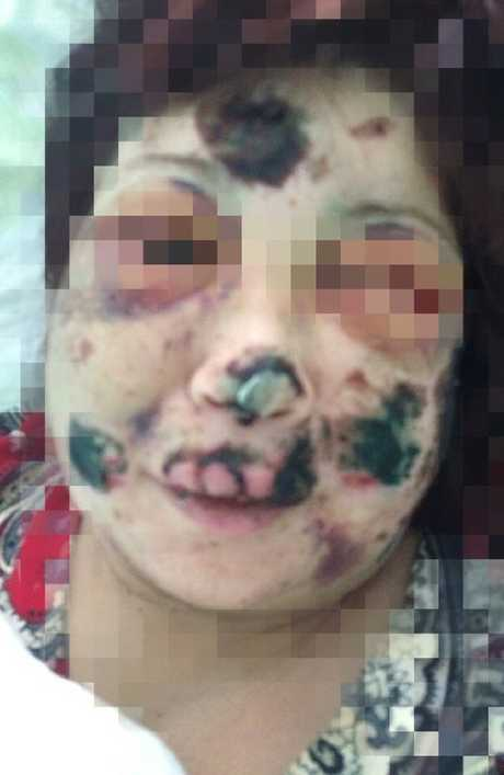 The extent of injuries to Tamara's (not her real name) face is revealed in this photo released by her family.