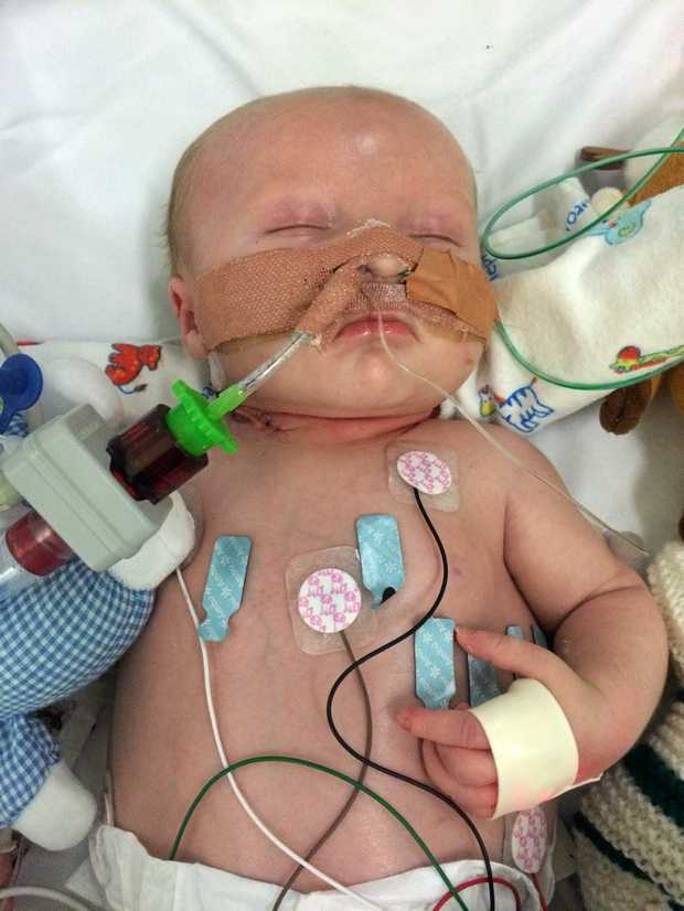 LITTLE FIGHTER: Baby Lincoln Elwell fights for life at Lady Cilento Children's Hospital.   / Photo Contributed