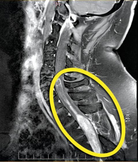 The tumour on Dan Eiser's spine.