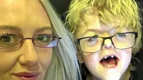Kiara Searby and her son Declan, 10, who was born with Apert Syndrome.
