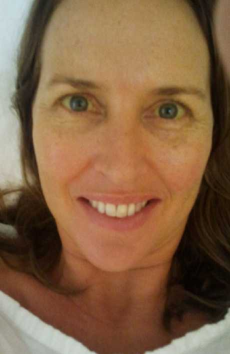 This picture was taken a couple of days after Kristin Washbourne was diagnosed with pancreatic cancer and given a two per cent shot at survival. She hadn't even realised her skin and eyes were turning yellow. Picture: Kristin Washbourne