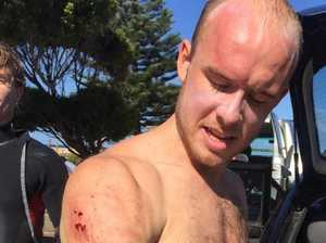 Shark attack at surf beach: 'I don't know if I can tell mum'
