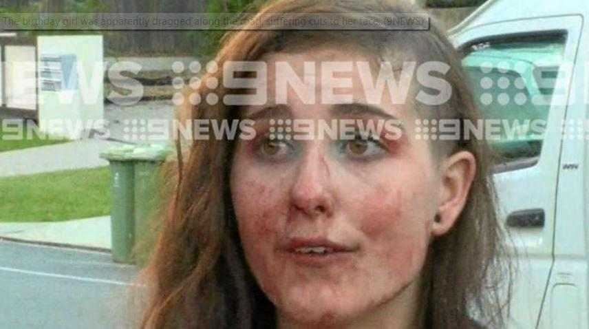 INJURED: The birthday girl who was reportedly dragged along a road by a man this morning.
