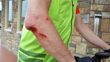 Brisbane cyclist Ian Chant was hit by a car outside the Horse and Jockey Hotel Motel today.