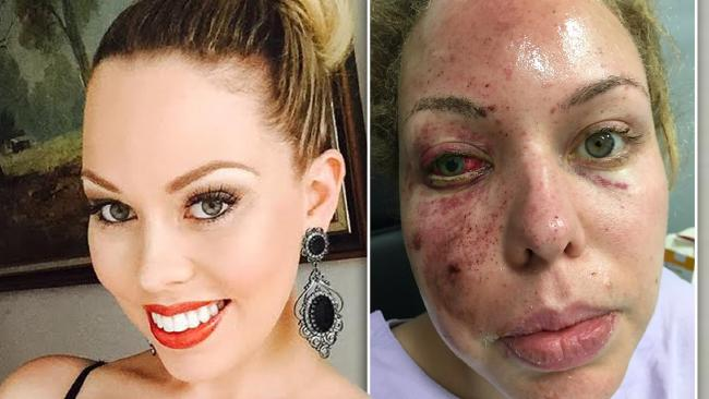 Felicia D'Jamirze before and after the grenade explosion that burnt her face.