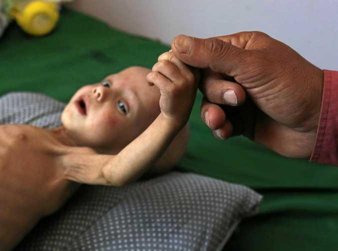 A malnourished Yemeni child receives treatment amid worsening malnutrition in the emergency ward of a hospital in Sana'a, Yemen.