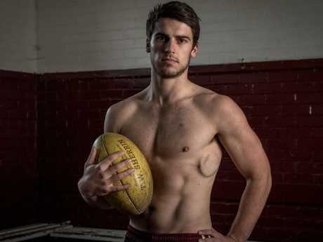 Stuart Goddard has a defibrillator permanently fitted to his heart to keep it pumping. Picture: Jake Nowakowski